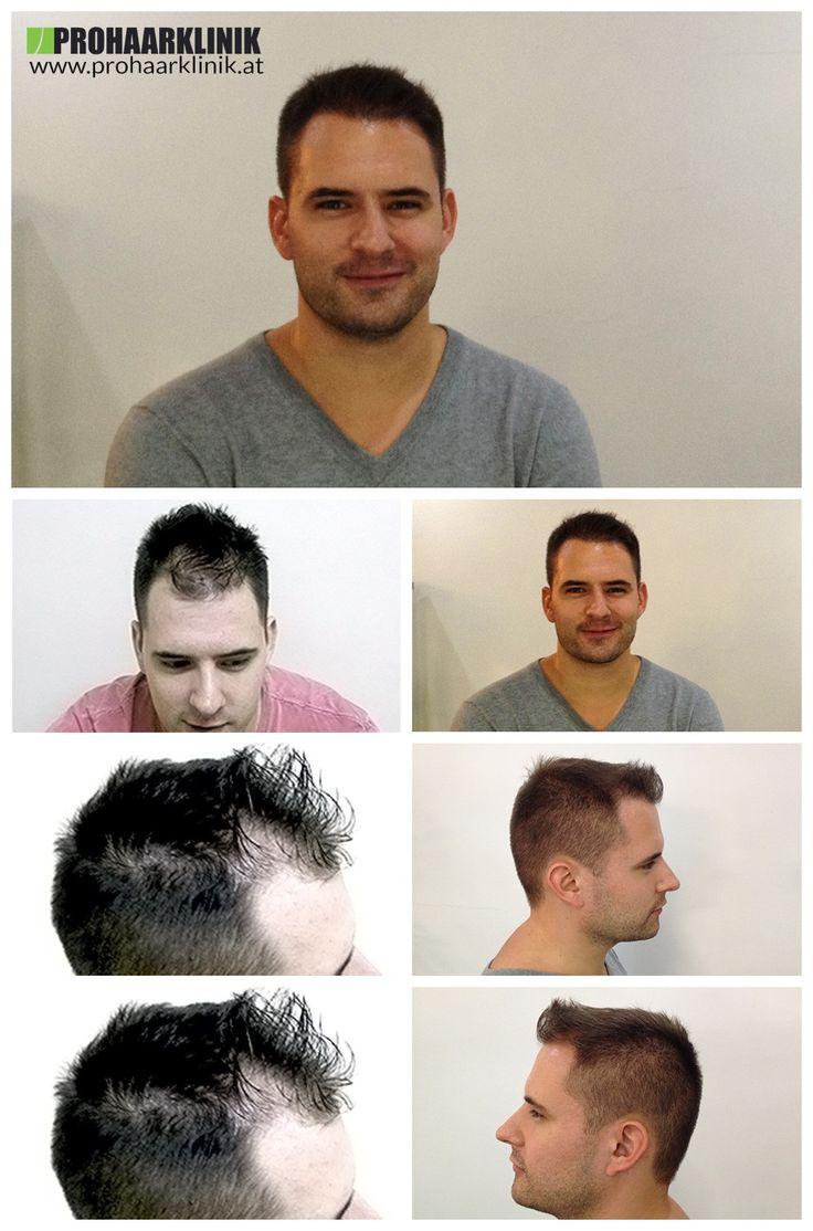 http://www.prohaarklinik.at/haartransplantation-vorher-nachher-bilder/   Haartransplantation Videos - PROHAARKLINIK  Andras wurde Glatzenbildung in der Zone 1 und 2. Auf dem Bild sehen Sie das Ergebnis der 2700+ Haar Implantate, die bei der PROHAARKLINIK durchgeführt wurden, zu sehen. Nach Foto aufgenommen 1 Jahr nach der Haarwiederherstellung.