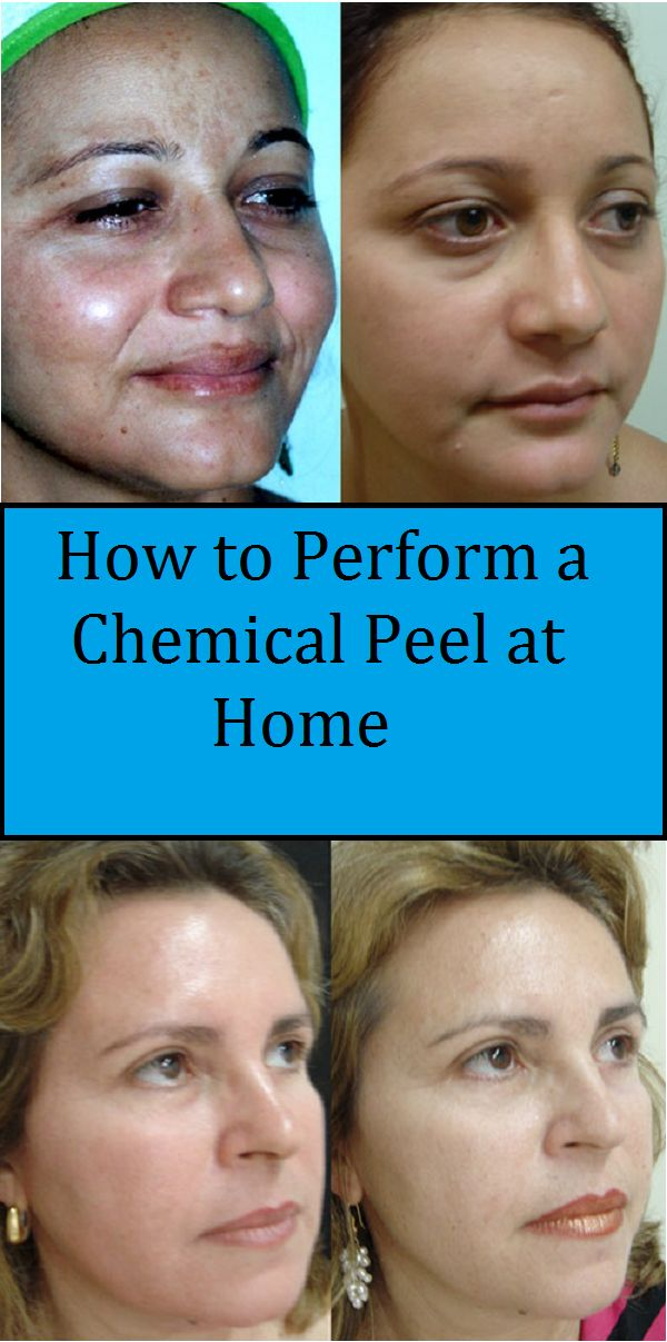 If you want to perform a facial chemical peel at home, you should select a mild type of chemical peel that suits your type of skin and the irregularity to treat.  Buy glycolic or TCA peel or a combination.   Again, go for lower concentrations if you are n