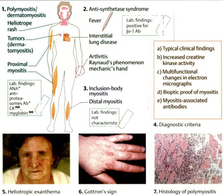 Natural Remedies For Polymyositis