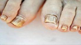 Même les médecins sont étonnés de CECI : Faites tremper vos pieds dans un de ces mélanges pour vous débarrasser NATURELLEMENT d'une mycose des ongles…