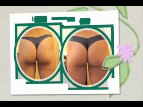 Cellulite Factor review | Cellulite solution and treatment for cellulitis