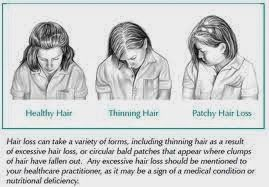 Most people have the conception that genetic hair loss like Pattern Baldness is exclusively targeted at men only. So you think that if you are a woman you are safe from this wrath of God? Think again. - See more at: http://postpartum-hair-loss.blogspot.com/search?updated-max=2014-03-05T08:09:00-08:00&max-results=7&start=21&by-date=false#sthash.5HwXPbxQ.dpuf