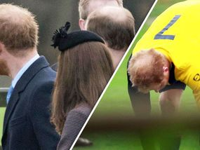 AFTER years ribbing his brother, it seems Prince Harry's royal crown has finally succumbed to the same baldness gene.