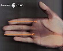 """Hand with index finger being shorter than the ring finger, resulting in a small 2D:4D ratio, pointing to a high exposure to testosterone in the uterus (opposite of the """"Napoleonic forefinger"""" - more common in women)"""