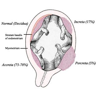 Placenta accreta is an abnormally firm and deep attachment of the placenta to the uterine wall. It's actually an umbrella term for three variants, depending on how deeply the placental cells invade: placenta accreta, placenta increta and placenta percreta