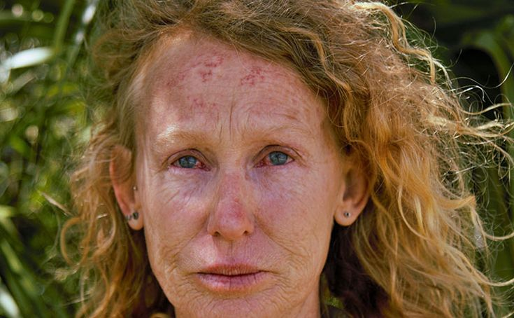 Kerri Tonkin, pictured after police pepper sprayed her while she was locked onto equipment in protest at coal seam gas mining in the Pilliga.