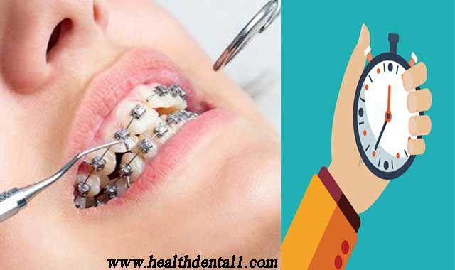 فبعد وضع الاسلاك على الاسنان قد يكون هناك بعض الألم في الأيام القليلة الأولى أو حتى الأسابيع حيث تتكيف أسنانك وفكك مع الض Nostril Hoop Ring Nose Ring Hoop Ring