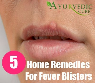 5 Best Home Remedies For Fever Blisters