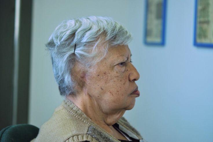 Pérdida del pabellón auricular, corrección sin cirugía, No 141