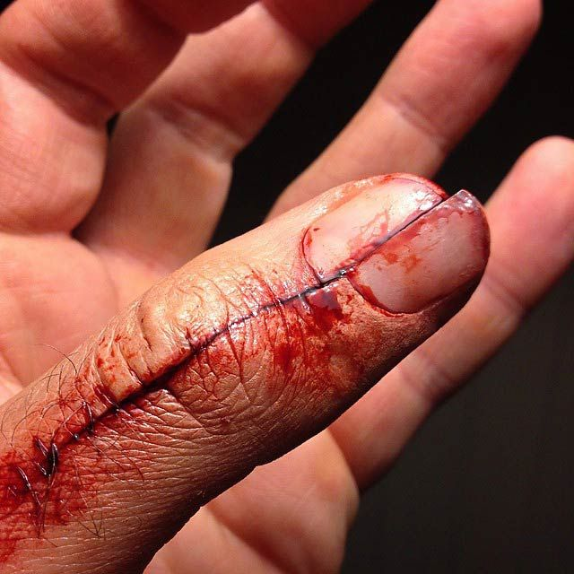 Thumb sliced down the middle - However, we would see it before the stitches.