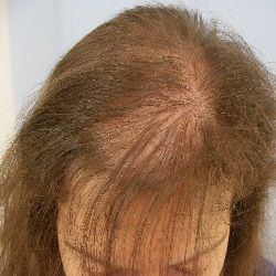 Natural Treatments For Alopecia - How To Treat Alopecia Naturally   Search Herbal Remedy