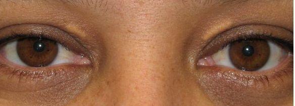 Göz kapağında yağ birikimi: Göz kapaklarında erken yaşta biriken yağ plakları (xsantelezma), kolesterol seviyenizin yüksek olduğunun işaretçisi olabilir. Kan testi yaptırmayı ihmal etmeyin..