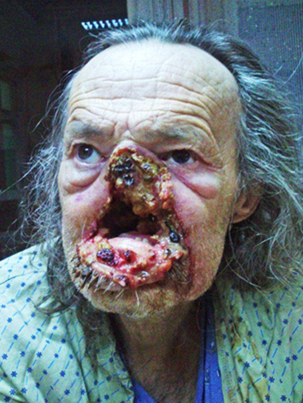 Anus flesh eating