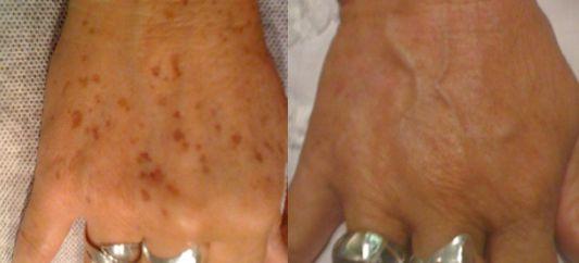 A kezek elárulják korodat, nemcsak a ráncok, de a csúnya barna foltok is megjelennek rajtuk a korral, főleg, ha fiatalon nem használtál fényvédőt és napoztál gyakran. Szerencsére van megoldás! Az i…