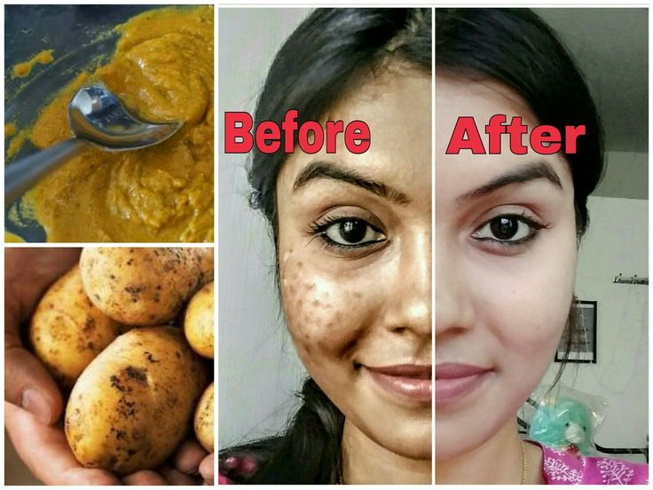 Remove dark spots in just 7 days   100% Natural   Get rid of uneven skin...   This treatment will bring huge change in your skin just in 7 days... T his method is very effective... as it is 100% natural hence can help many people those who are facing this problem...