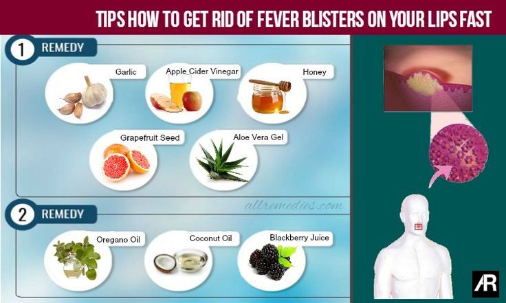 45 Tips How to Get Rid of Fever Blisters on Your Lips Fast