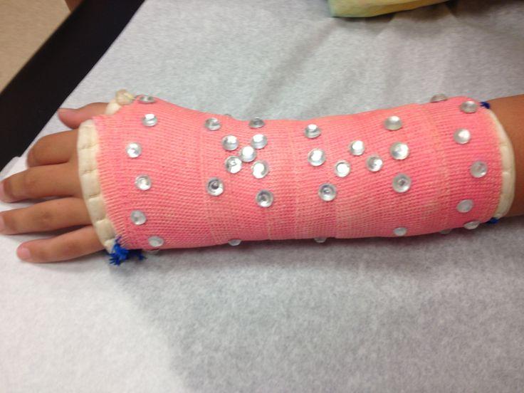 17 best images about cast decorations on pinterest trips for Arm cast decoration ideas