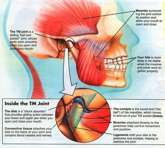 The symptoms of TMJ are magnified for a person also living with Fibromyia.  The pain cause Migraines, Tension headches, pain when chewing~talking. It directly affects the 5TH cranial nerve which causes intense pain.. Muscles relaxants and strong prescriptions needed for relief.  Bruxism caused teeth to crack and wear down as well...  Awful way tol ive..