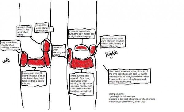 Knee Pain Diagnosis Diagram | Diagram | Pinterest | Knee pain