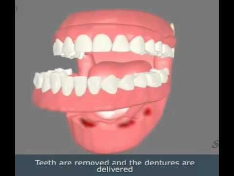 The dental implants are of several types. You may have to go for single dental implants or the multiple version of it for the treatment of your teeth.