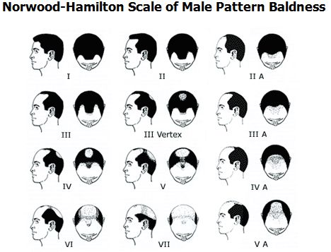 Male Pattern Baldness All The Details  Are you dealing with Male Pattern Baldness?  Are you wondering what causes it and what you can do abo...