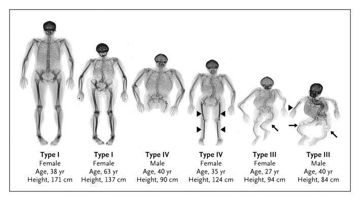 La Osteogenesis Imperfecta pertenece al grupo de Enfermedades Raras (ER) y son en general, un conjunto de enfermedades crónicas muy diversas que se caracterizan por su baja prevalencia (menos de 5 por cada 10000. Visite nuestros médico especialistas en Ortopedia, Bogotá, PBX: 6923370 Bogotá - Colombia.