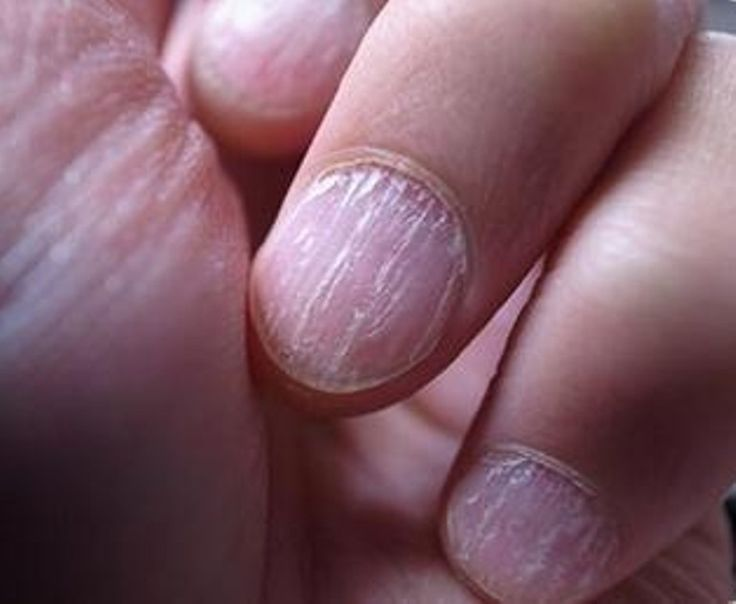 ¿Por qué uñas escamadas? - http://notimundo.com.mx/salud/verguenza-escaman-las-unas/9450