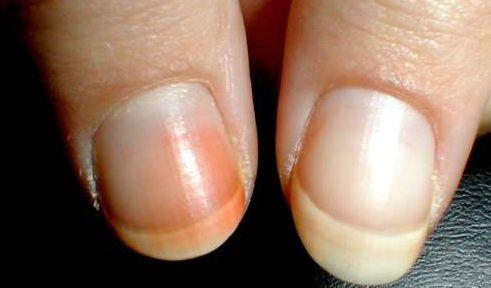 Zo kom je van je gele nagels af! Velen houden er wel van: nagels opsieren met mooie en vrolijke kleurtjes. Vooral rood is favor...