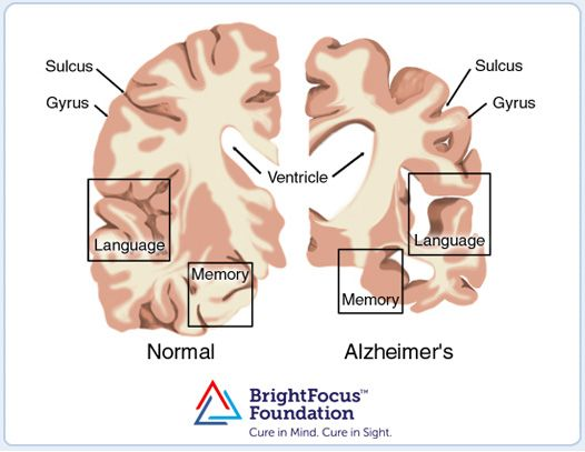 Medical illustration showing a brain with Alzheimer's disease