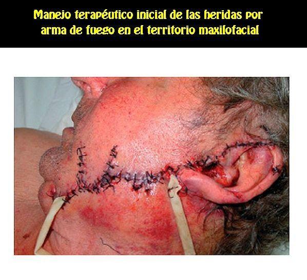 Manejo terapéutico inicial de las heridas por arma de fuego en el territorio maxilofacial | OVI Dental