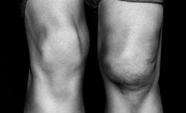 What Causes Knee Swelling?