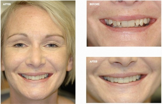 The aim of treatment is to get you a great smile. We can help at Bury Dental Centre