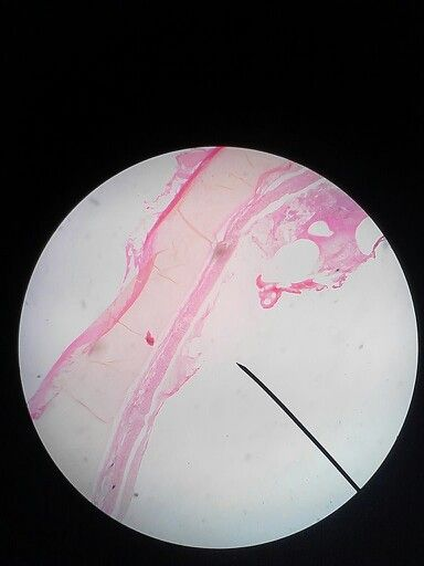 Sediaan Trachea cartilage ; Pembesaran 40x; Hematoxylin Eosin (HE)
