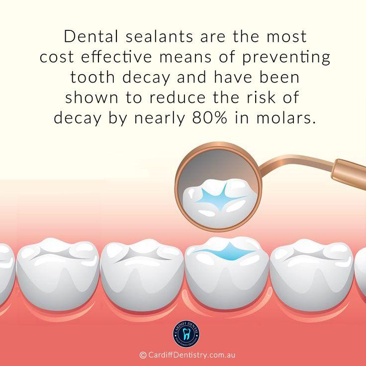 Dentist cardiff dental sealants