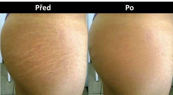 Strie jsou kožní problém charakteristický roztržením střední vrstvy kůže, po kterém se na povrchu pokožky vytvoří příznačné značky se světlým, případně tmavočerveným zabarvením.