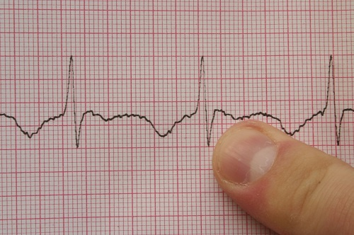 EKG Recognition:  An online #CEU, continuing education course for #nurses. EKG monitoring is becoming more common in inpatient and outpatient care settings as well as emergency and critical care areas. Can you tell what rhythm your patient is in? Click the link to learn more about this important #CE course: http://www.pedagogyeducation.com/Acute-Care-Campus/Class-Catalog/General/Class.aspx?Class=55&cmp=H14