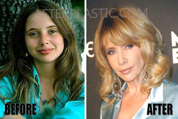 Rosanna Arquette Plastic Surgery Before And After Movies