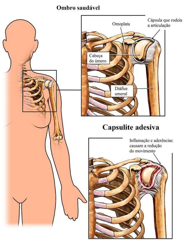 A calcificação no ombro é uma acumulação gradual de cálcio na articulação do ombro. Geralmente, a área em que se formam uma calcificação do ombro está na parte superior do braço na área em que se encaixam os tendões do manguito rotador, nomeadamente supra-espinhal.