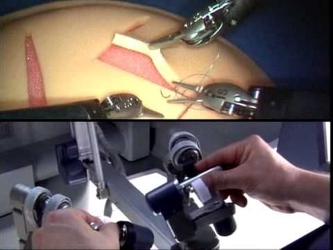 Robotic Surgery at UAMS using da Vinci Surgical System - YouTube