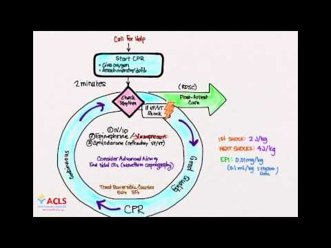 Pediatric Advanced Life Support (#PALS) Pulseless Arrest whiteboard video lesson by the #ACLS Certification Institute. Our PALS training series covers everything you need to know to pass your PALS course. Visit us online at http://www.aclscertification.com for more free material or subscribe to the #ACLSCertificationInstitute Youtube channel at http://www.youtube.com/aclsinstitute #BLS #nurse #doctor #emt #paramedic #premed