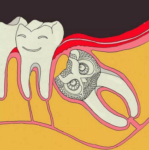 """❓Что делать, если зуб мудрости не прорезался вообще?  Ретинированный зуб продолжает расти, только внутри, смещаясь в сторону или вниз. Своим неправильным ростом он задевает корневую систему соседних зубов и нервные окончания. Рано или поздно такое давление приведёт к искривлению. ‼Если ваш зуб """"застрял"""" в десне и вы заметили неприятные симптомы, срочно обратитесь к стоматологу! Впрочем, единственным методом лечения является его удаление!  ____________________________  Запись на бесплатную…"""