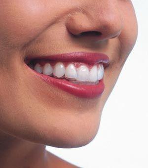 Precio ortodoncia invisible: ¿Cuánto cuentan los brackets transparentes