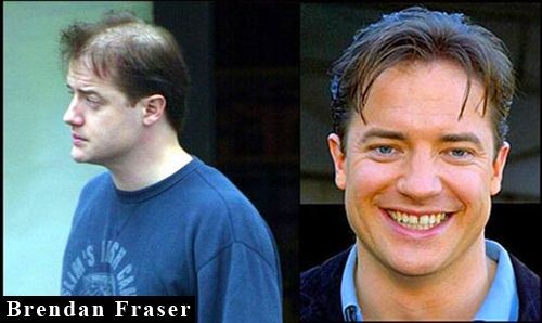 Brendan fraser hair transplant hottest canadian actor - Brendan fraser bald ...