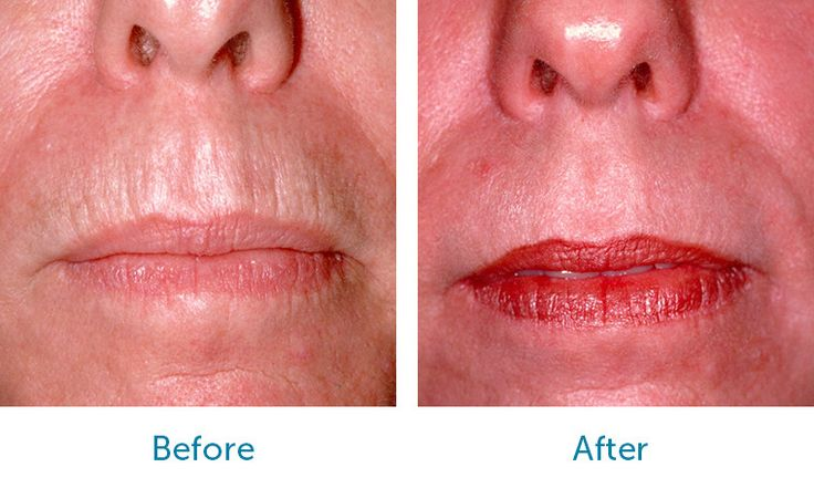 Laser Skin Resurfacing - Patient BD Before & After Laser Resurfacing of Upper Lip