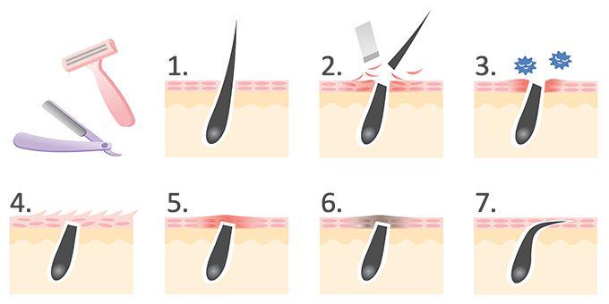 Pickel Und Juckende Trockene Haut Sind Nicht Selten Das Ergebnis Wenn Man Den Haaren In Seinem Intimbereich Zu Leibe Geruckt I Dry Itchy Skin Shaving Pimples