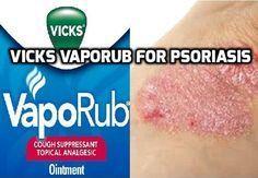 Vicks Vaporub for Psoriasis- http://www.psoriasisselfmanagement.com/scalp-psoriasis/vicks-vaporub-for-psoriasis/