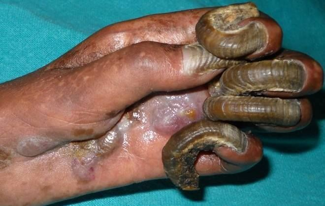 Onychogryphosis or 'ram's horn nails' is a nail dystrophy ...