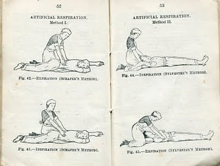 The early beginnings of CPR