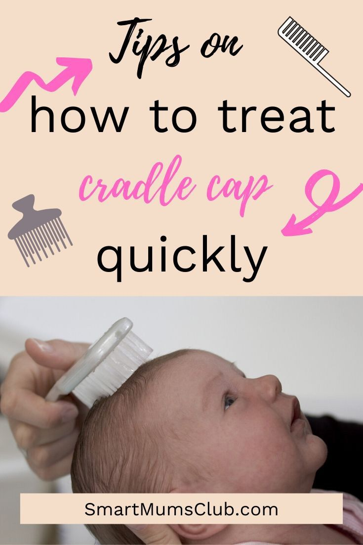 Tips On How To Treat Cradle Cap Quickly In 2020 Cradle Cap Baby Cradle Cap Cradle Cap Remedies