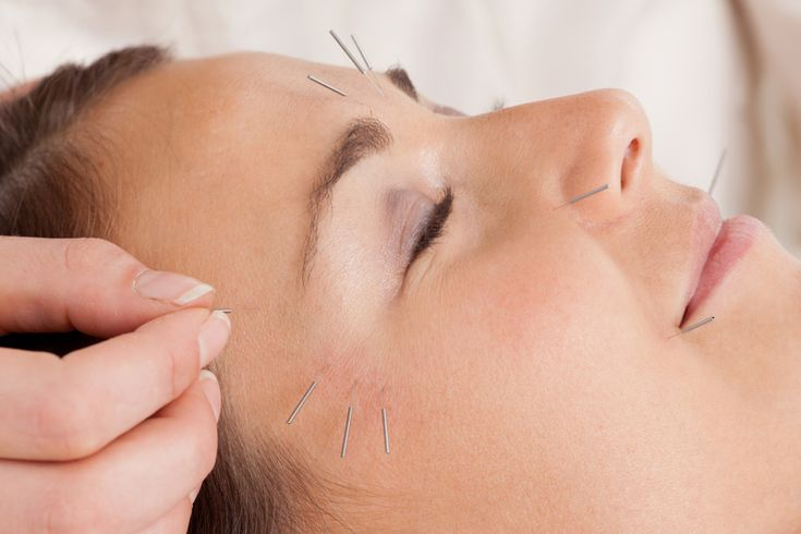 "Cosmetic Acupuncture Facial rejuvenation acupuncture (sometimes called the ""acupuncture facelift"") is an effective non-surgical and non-toxic method of reducing the signs of ageing and improving the quality and tone of the skin on the face. However, it is much more than just a cosmetic procedure."